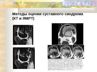 Методы оценки суставного синдрома (КТ и ЯМРТ)