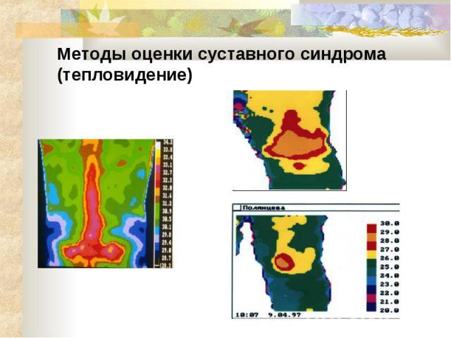 Методы оценки суставного синдрома (тепловидение)
