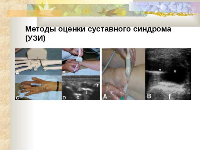 Методы оценки суставного синдрома (УЗИ)