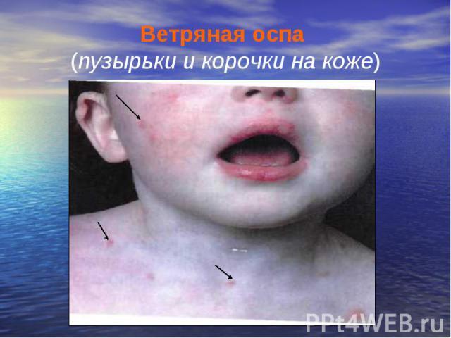 Ветряная оспа (пузырьки и корочки на коже)