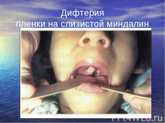 Дифтерия пленки на слизистой миндалин