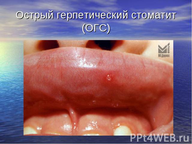 Острый герпетический стоматит (ОГС)