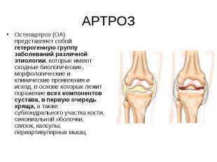 Остеоартроз (ОА) представляет собой гетерогенную группу заболеваний различной эт