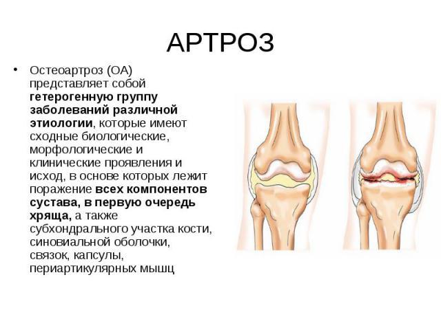 Остеоартроз (ОА) представляет собой гетерогенную группу заболеваний различной этиологии, которые имеют сходные биологические, морфологические и клинические проявления и исход, в основе которых лежит поражение всех компонентов сустава, в первую очере…