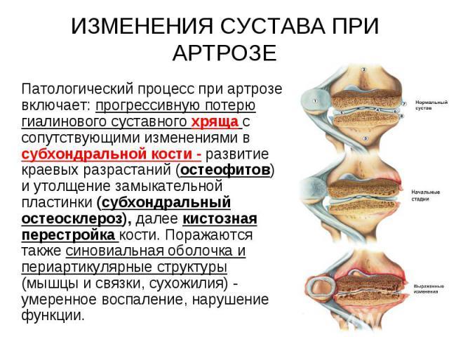 Патологический процесс при артрозе включает: прогрессивную потерю гиалинового суставного хряща с сопутствующими изменениями в субхондральной кости - развитие краевых разрастаний (остеофитов) и утолщение замыкательной пластинки (субхондральный остеос…