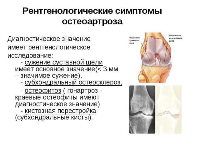 Диагностическое значение Диагностическое значение имеет рентгенологическое исследование: - сужение суставной щели имеет основное значение(< 3 мм – значимое сужение), - субхондральный остеосклероз, - остеофитоз …