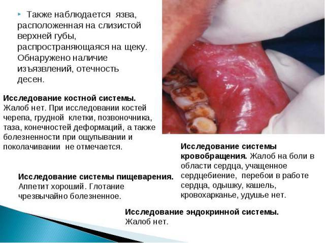 Также наблюдается язва, Также наблюдается язва, расположенная на слизистой верхней губы, распространяющаяся на щеку. Обнаружено наличие изъязвлений, отечность десен.
