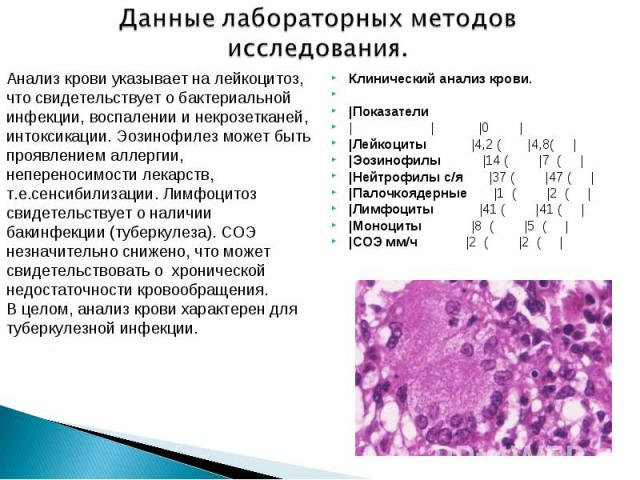 Клинический анализ крови. Клинический анализ крови.  |Показатели | | |0 | |Лейкоциты |4,2 ( |4,8( | |Эозинофилы |14 ( |7 ( | |Нейтрофилы с/я |37 ( |47 ( | |Палочкоядерные |1 ( |2 ( | |Лимфоциты |41 ( |41 ( | |Моноциты |8 ( |5 ( | |СОЭ мм/ч |2 …