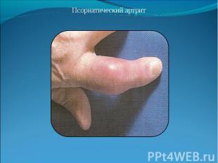 Псориатический артрит Псориатический артрит