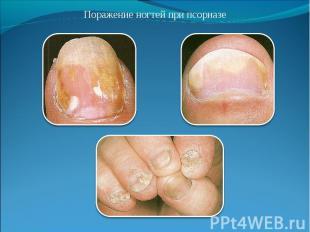 Поражение ногтей при псориазе Поражение ногтей при псориазе