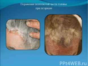 Поражение волосистой части головы Поражение волосистой части головы при псориазе