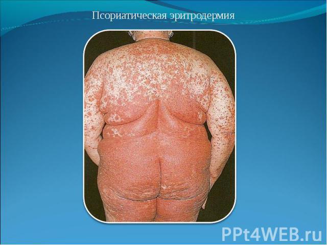 Псориатическая эритродермия Псориатическая эритродермия