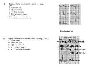 Определите положение электрической оси сердца (ЭОС): Определите положение электр