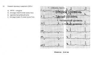 10. Укажите причину «широкого QRS»: 10. Укажите причину «широкого QRS»: а) WPW –