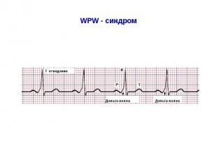 WPW - синдром