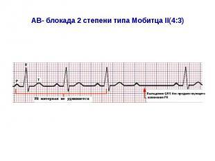AВ- блокада 2 степени типа Мобитца II(4:3)