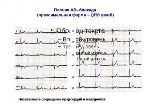Полная АВ- блокада (проксимальная форма – QRS узкий)