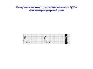 Синдром «широкого, деформированного QRS» Идиовентрикулярный ритм