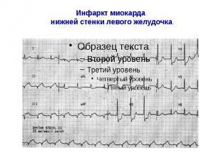 Инфаркт миокарда нижней стенки левого желудочка