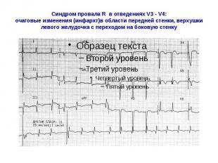 Синдром провала R в отведениях V3 - V4: очаговые изменения (инфаркт)в области пе