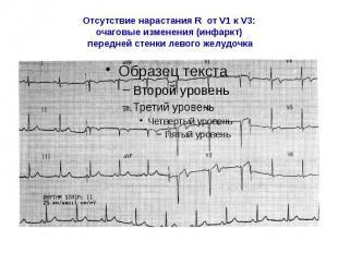 Отсутствие нарастания R от V1 к V3: очаговые изменения (инфаркт) передней стенки