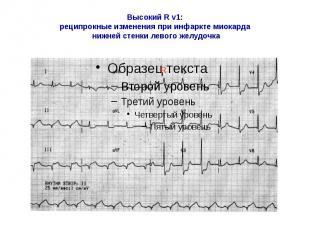 Высокий R v1: реципрокные изменения при инфаркте миокарда нижней стенки левого ж