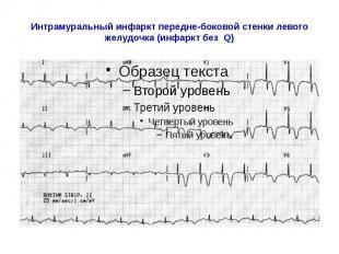 Интрамуральный инфаркт передне-боковой стенки левого желудочка (инфаркт без Q)