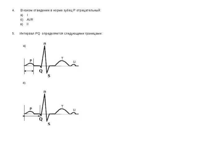 4. В каком отведении в норме зубец Р отрицательный: 4. В каком отведении в норме зубец Р отрицательный: а) I б) AVR в) II 5. Интервал PQ определяется следующими границами: