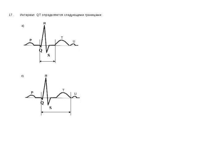 17. Интервал QT определяется следующими границами: 17. Интервал QT определяется следующими границами: