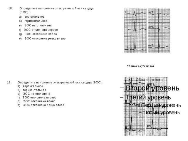 Определите положение электрической оси сердца (ЭОС): Определите положение электрической оси сердца (ЭОС): а) вертикальное б) горизонтальное в) ЭОС не отклонена г) ЭОС отклонена вправо д) ЭОС отклонена влево е) ЭОС отклонена резко влево