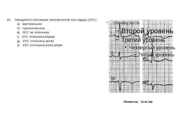 20. Определите положение электрической оси сердца (ЭОС): 20. Определите положение электрической оси сердца (ЭОС): а) вертикальное б) горизонтальное в) ЭОС не отклонена г) ЭОС отклонена вправо д) ЭОС отклонена влево е) ЭОС отклонена резко влево