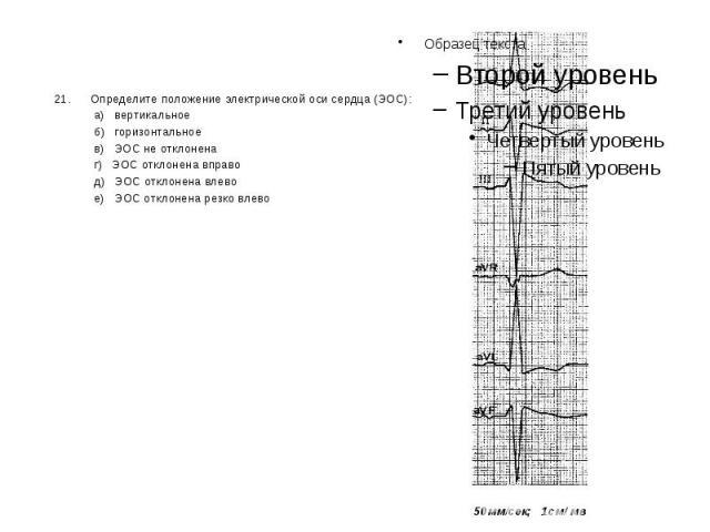 21. Определите положение электрической оси сердца (ЭОС): 21. Определите положение электрической оси сердца (ЭОС): а) вертикальное б) горизонтальное в) ЭОС не отклонена г) ЭОС отклонена вправо д) ЭОС отклонена влево е) ЭОС отклонена резко влево