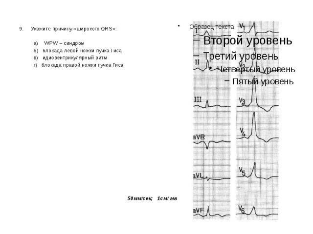 9. Укажите причину «широкого QRS»: 9. Укажите причину «широкого QRS»: а) WPW – синдром б) блокада левой ножки пучка Гиса в) идиовентрикулярный ритм г) блокада правой ножки пучка Гиса