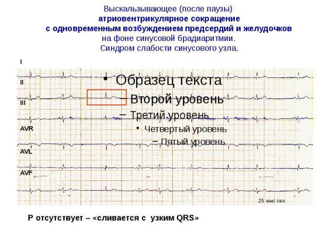 Выскальзывающее (после паузы) атриовентрикулярное сокращение с одновременным возбуждением предсердий и желудочков на фоне синусовой брадиаритмии. Синдром слабости синусового узла.