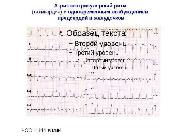 Атриовентрикулярный ритм (тахикардия) с одновременным возбуждением предсердий и желудочков
