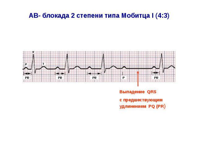 AВ- блокада 2 степени типа Мобитца I (4:3)