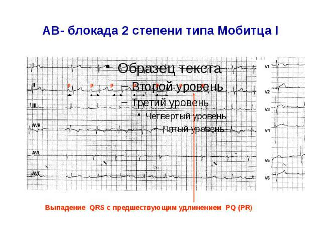 AВ- блокада 2 степени типа Мобитца I