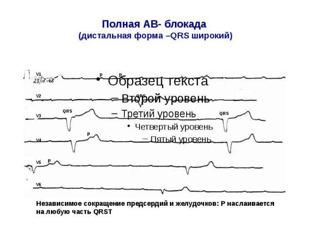 Полная АВ- блокада (дистальная форма –QRS широкий)