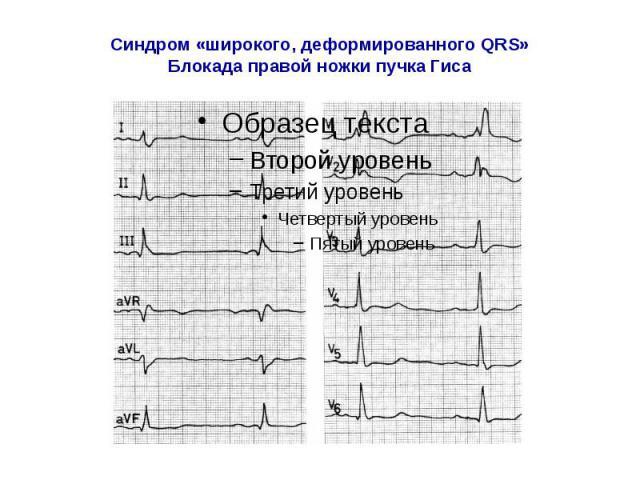 Синдром «широкого, деформированного QRS» Блокада правой ножки пучка Гиса