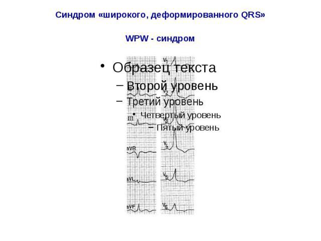 Синдром «широкого, деформированного QRS» WPW - синдром