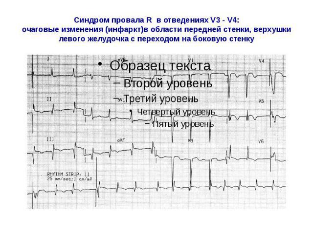 Синдром провала R в отведениях V3 - V4: очаговые изменения (инфаркт)в области передней стенки, верхушки левого желудочка с переходом на боковую стенку