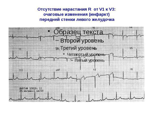 Отсутствие нарастания R от V1 к V3: очаговые изменения (инфаркт) передней стенки левого желудочка