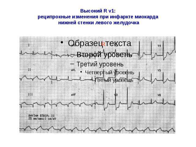 Высокий R v1: реципрокные изменения при инфаркте миокарда нижней стенки левого желудочка