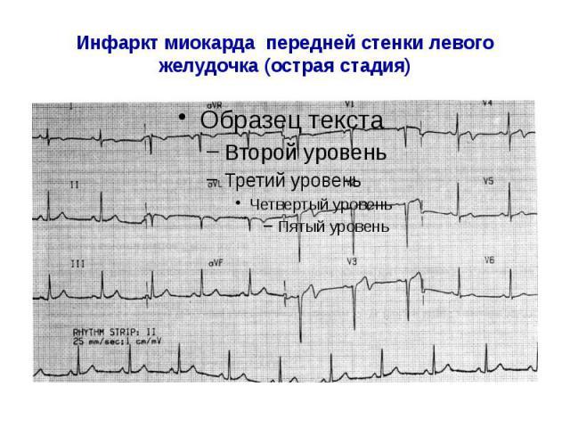 Инфаркт миокарда передней стенки левого желудочка (острая стадия)