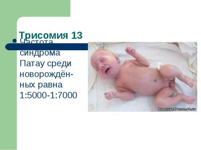 Трисомия 13 Частота синдрома Патау среди новорождён-ных равна 1:5000-1:7000