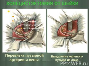 Перевязка пузырной артерии и вены