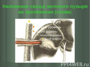 Наложение свища желчного пузыря на протяжении (схема)