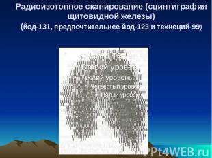 Радиоизотопное сканирование (сцинтиграфия щитовидной железы) (йод-131, предпочти