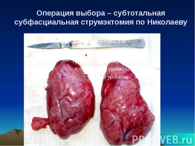 Операция выбора – субтотальная субфасциальная струмэктомия по Николаеву