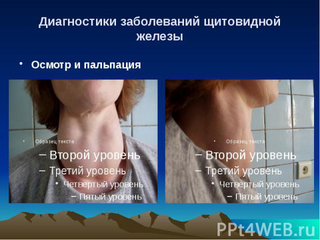 Диагностики заболеваний щитовидной железы Осмотр и пальпация